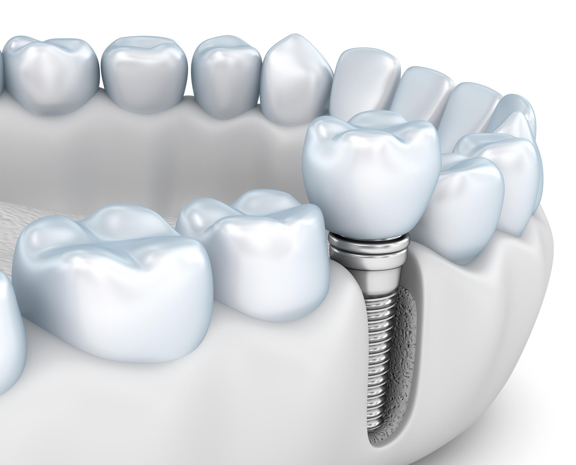 ModelDenta - Dantų Implantai